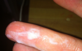 Khí hư màu trắng là dấu hiệu của nhiều bệnh phụ khoa nên cẩn trọng