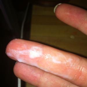 Khí hư ra nhiều, có màu trắng đục,... là nguyên nhân và triệu chứng bệnh viêm âm hộ