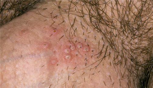 Bệnh mụn rộp sinh dục cũng có thể là nguyên nhân gây ngứa vùng kín