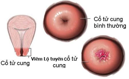 Viêm lộ tuyến cổ tử cung có thể khiến khí hư chuyển thành màu đen