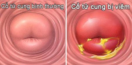 Bệnh viêm cổ tử cung cũng khiến huyết trắng có màu trắng đục