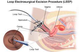 Kỹ thuật điều trị viêm lộ tuyến cổ tử cung bằng dao Leep
