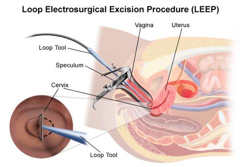 Chữa viêm lộ tuyến cổ tử cung bằng dao Leep là sao, có tốt không?