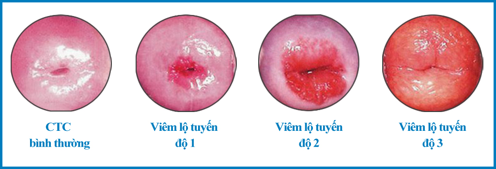 Đốt điện cổ tử cung được chỉ định cho trường hợp viêm lộ tuyến nặng