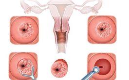 Ra máu sau đốt điện cổ tử cung có nguy hiểm không?
