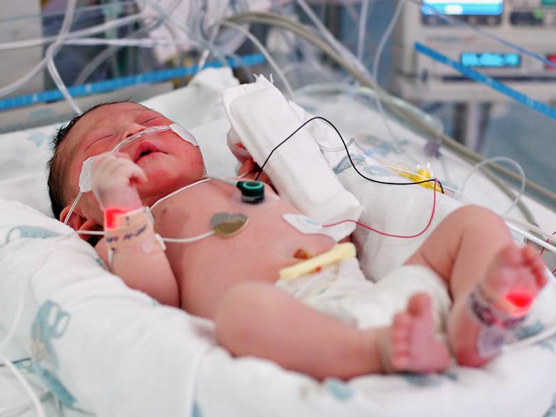 Nguy cơ nhiễm trùng trẻ sơ sinh do thai phụ bị viêm cổ tử cung