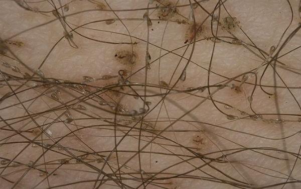 Rận mu kí sinh ở vùng lông mu, gây ngứa dữ dội nhất là vào ban đêm