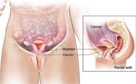 Chữa viêm tử cung bằng dân gian có hiệu quả không?