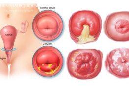 Chữa viêm tử cung bằng phụ khang đỗ minh tốt không
