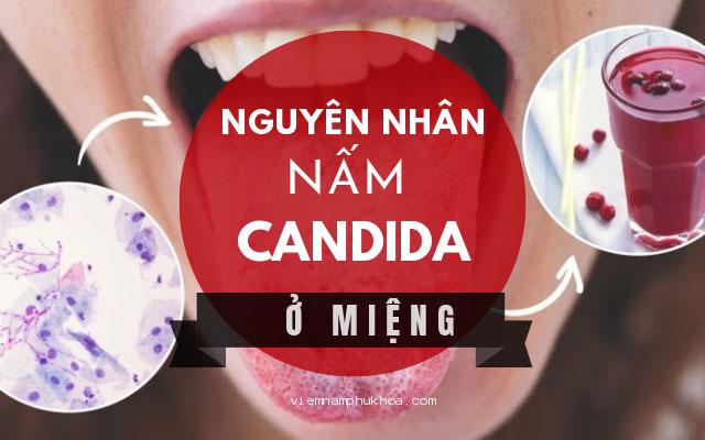 Nguyên nhân gây nấm Candida ở miệng