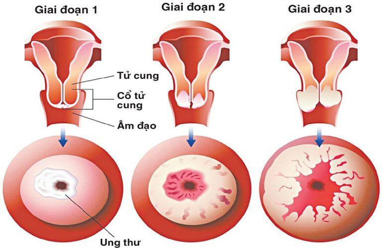 Ung thư cổ tử cung có thể dẫn tới vô sinh, thậm chí tử vong