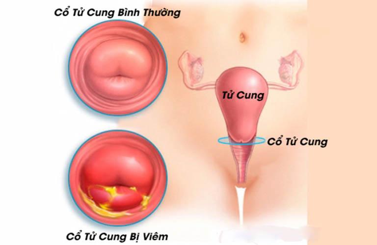 Hình ảnh cổ tử cung bình thường và cổ tử cung bị viêm